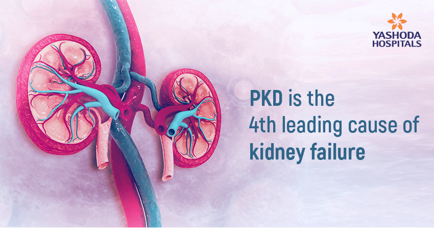 Learn the facts about PKD – Polycystic Kidney Disease