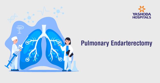 Pulmonary Endarterectomy: A Complex lifesaving lung surgery