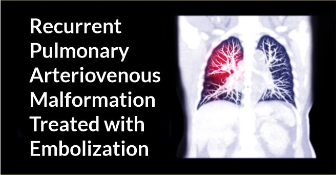Recurrent Pulmonary Arteriovenous Malformation Treated withEmbolization