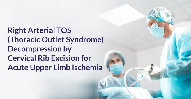 Right Arterial TOS (Thoracic Outlet Syndrome) Decompression by Cervical Rib Excision for Acute Upper Limb Ischemia