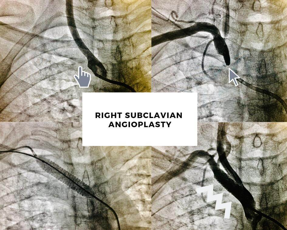 Right Subclavian Angioplasty
