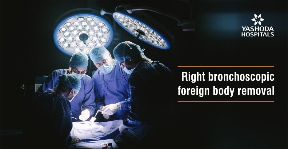 Right bronchoscopic foreign body removal