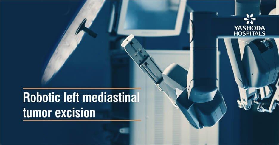 Robotic left mediastinal tumor excision