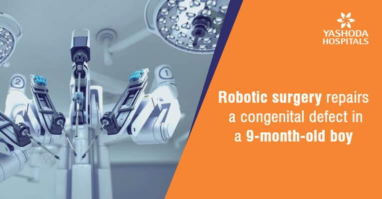 Robotic surgery repairs duplex kidney and ectopic ureter