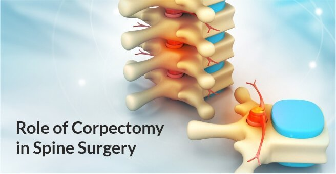 Role of Corpectomy in Spine Surgery case-1