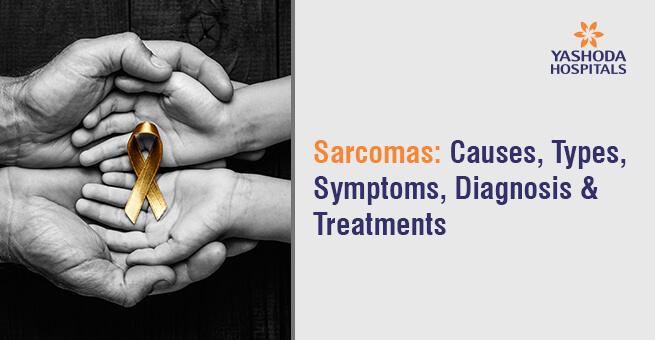 Sarcomas: Causes, Types, Symptoms, Diagnosis & Treatment