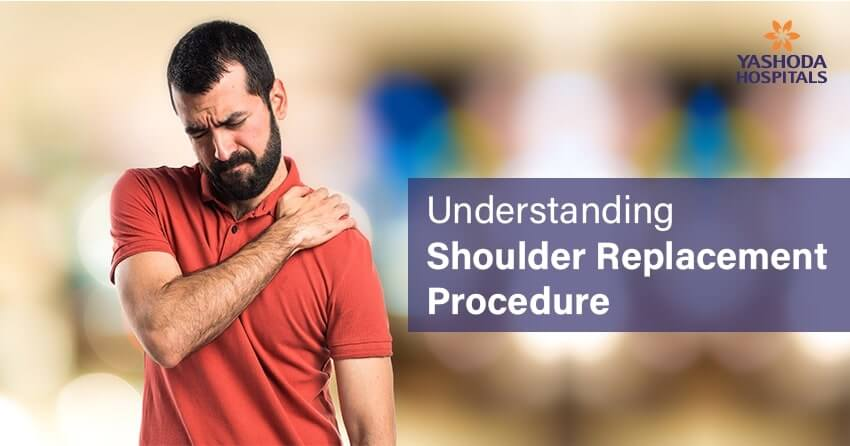 Shoulder Replacement Surgery (Arthroplasty)