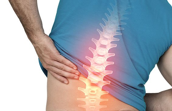 Spinal Fusion Cost in India | Spinal Fusion Cost in Hyderabad