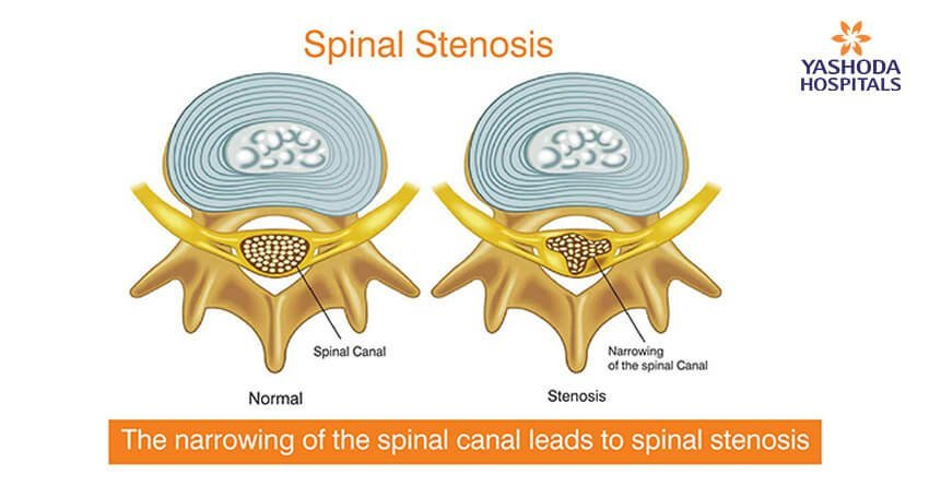 Lumbar and Cervical Spinal Stenosis