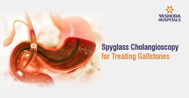Spyglass cholongioscopy