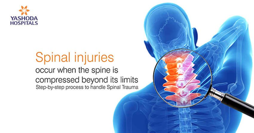 Step-by-step process to handle Spinal Trauma