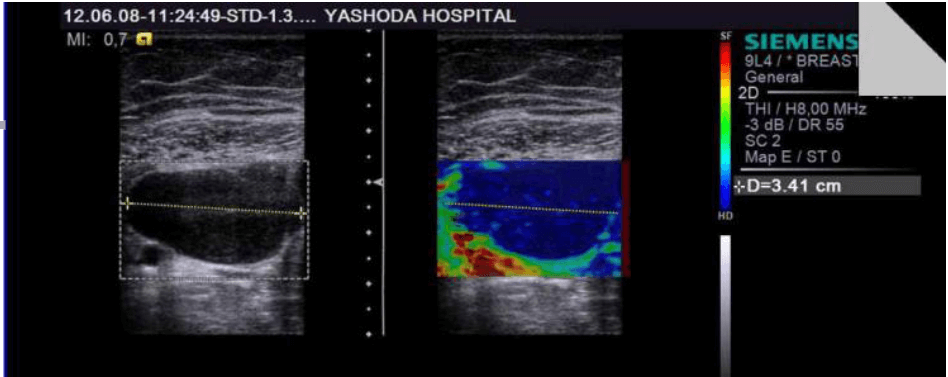 Strain Elastography of a firm to hard breast lesion: a fibroadenoma