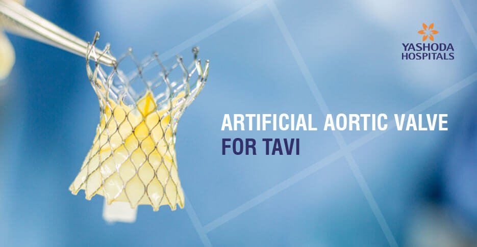 Transcatheter Aortic Valve Replacement (TAVR) for severe aortic valve stenosis