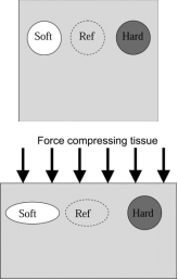 To an external compressive force, a soft lesion is more deformable, whereas, a hard lesion is less deformable relative to the surrounding tissue