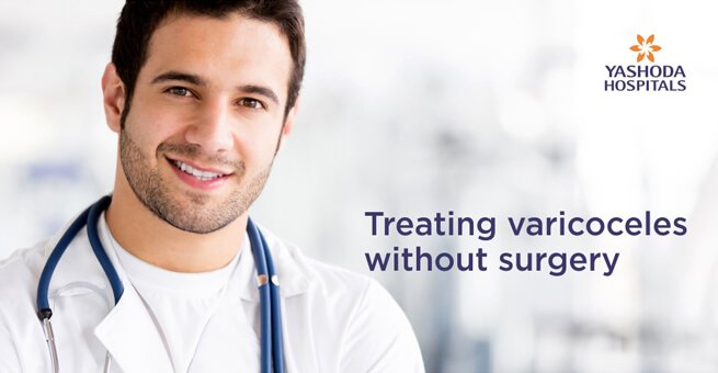 Treating varicoceles without surgery