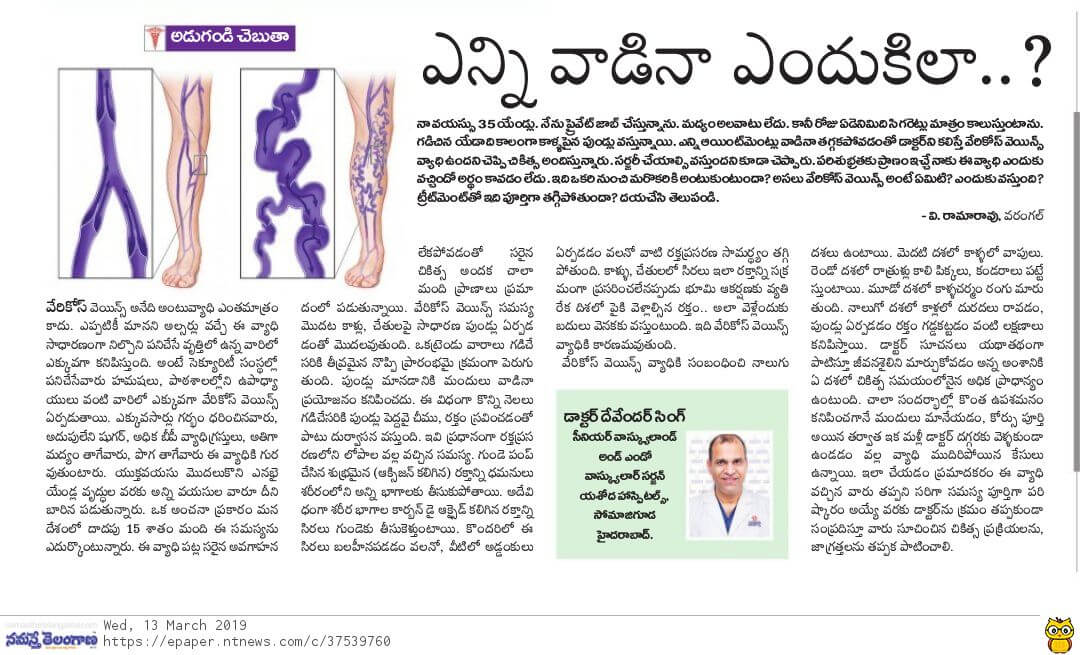 Treatment for Vericose veins-Dr Devender Singh