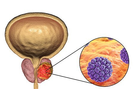 How is prostate cancer treated