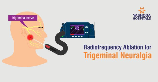 Radiofrequency Ablation for Trigeminal Neuralgia