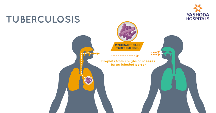 How does a person become infected with tuberculosis