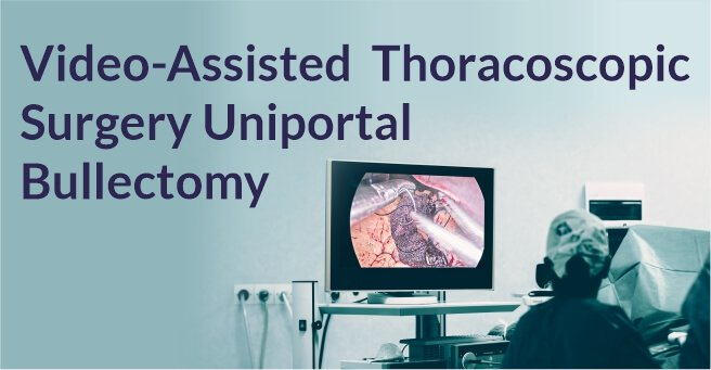 Video-Assisted Thoracoscopic Surgery of Solitary Fibrous Pleural TumorDr. BalasubramoniumMS (General Surgery), MCh(CVTS) Dr. Siva Prasad GoudMBBS, DNB (CVTS)Robotic & Minimally Invasive Thoracic Surgeon,Yashoda Hospitals, SecunderabadBACKGROUNDDIAGNOSIS & TREATMENTA 51 years old male patient came with a history of dyspnoea on exertion and purulent cough since 6 months. Pleural fluid aspiration was performed -6 times over 2 months. (1 - 1.5 litres of hemorrhagic pleural fluid was aspirated)Routine Investigations – WNLPFT:FVC – 1.26 FEV1 – 1.1 FEV1/FVC – 87.1ECHO – normal LV function , No RWMA Pre procedure chest radiographs showingmassive right pleural effusionCT scan showing solitary fibrous right pleural tumor CTscanshowedtwolargeheterogenouslyenhancing pleural based soft tissue density lesions with neovascularity in right hemithorax measuring 14.3x13.4x11.5cm and 7.9x7.5x6.1cm.Surgery - Pleural aspiration was done and 2 litres of fluid was drained. Patient developed hemodynamic instability and was resuscitated in OT. Right posterolateral thoracotomy was performed and the tumor was removed under VATS.Post op chest X rayRight pleural tumorVideo-Assisted Thoracoscopic Surgery Uniportal Bullectomy