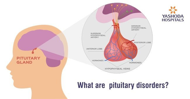What are pituitary disorders
