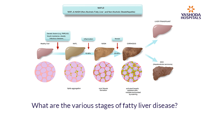 What are the various stages of fatty liver disease