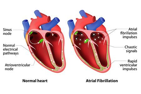 What-is-Atrial-Fibrillation
