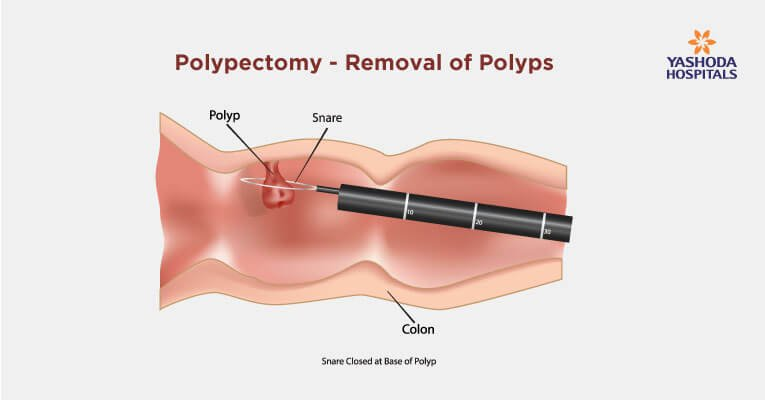 What is polypectomy procedure