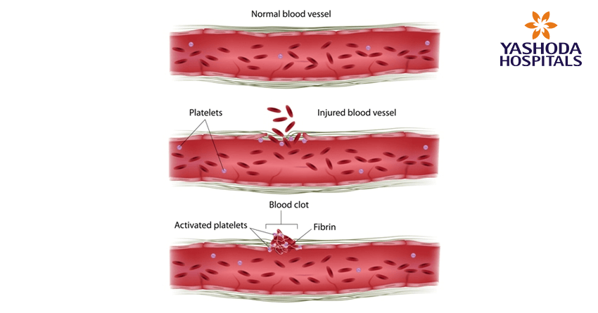 Primary angioplasty for Acute Myocardial infarction