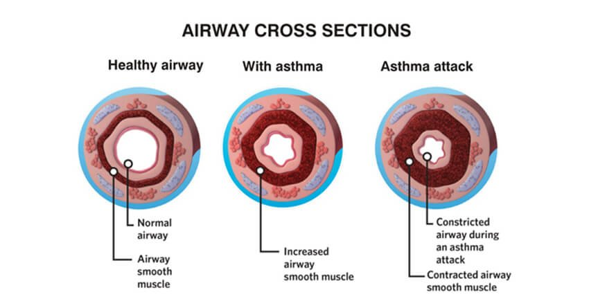 airway cross section