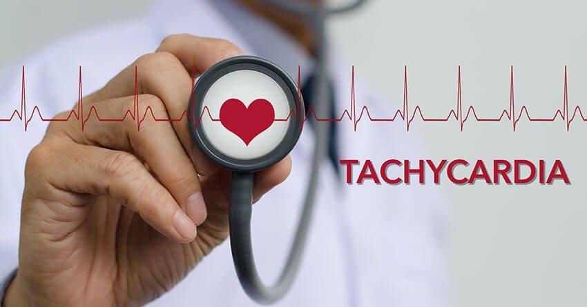arrhythmia-common heart disease