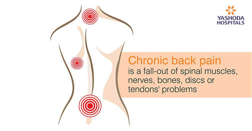 Chronic back pain is a fall-out of spinal muscles, nerves, bones