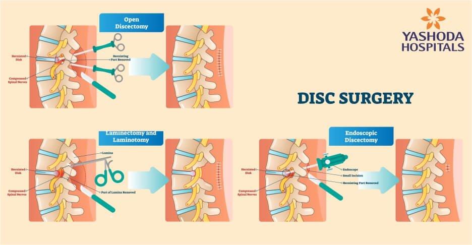 minimally invasive spine surgery - endoscopic spine surgery