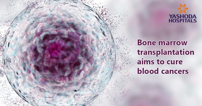 bone marrow transplantation a cure for lymphoma and other blood cancers