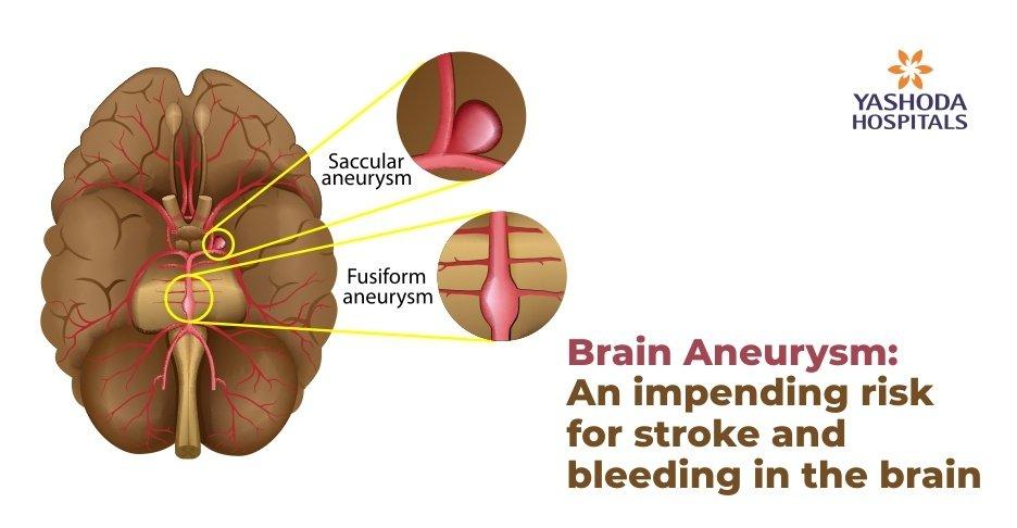 brain aneurysm and stroke