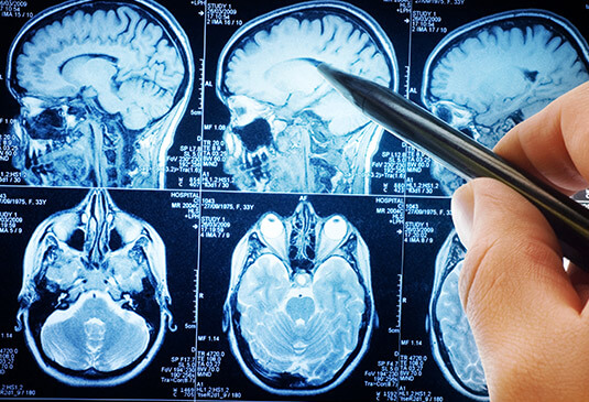 What is brain tumor surgery cost