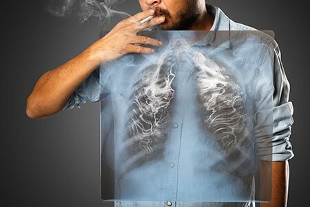 causes of lung cancer