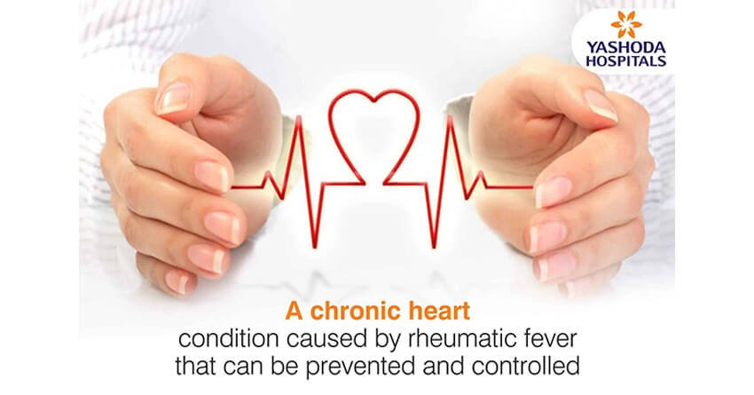 A chronic heart condition caused by rheumatic fever that can be prevented and controlled