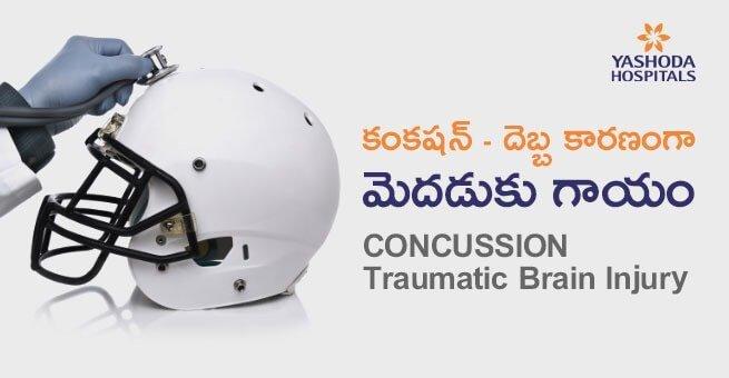 కంకషన్(Concussion), దెబ్బ కారణంగా మెదడుకు గాయం