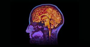 conditions brain surgeries