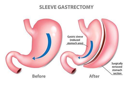bariatric surgery ile ilgili görsel sonucu