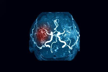 diagnosis of brain stroke