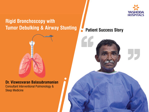 Rigid Bronchoscopy Treatment