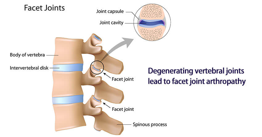 What is facet joint arthropathy