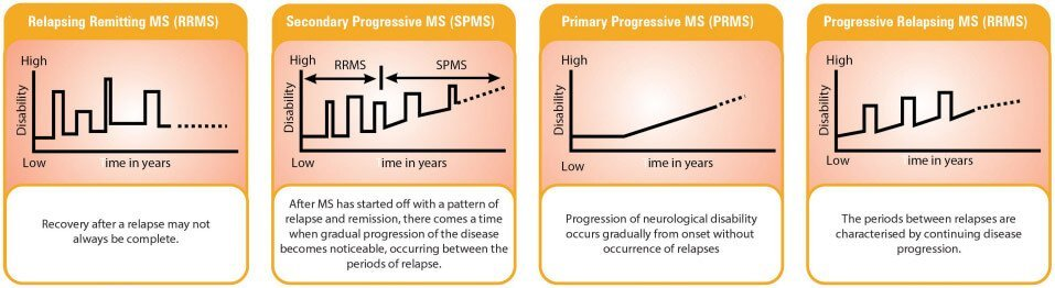 symptoms and course of MS can vary considerably from person to person