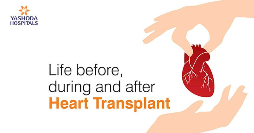 Life before, during and after heart transplant