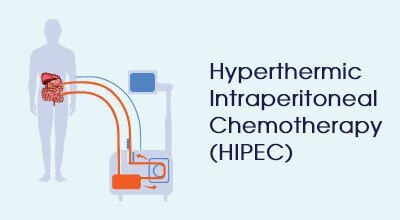 hyperthermic intraperitoneal chemotherapy Infographics HIPEC