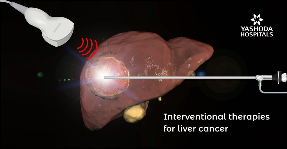 Minimally invasive interventional radiology therapies for liver cancer