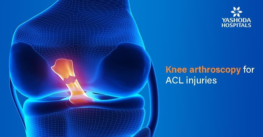 knee arthroscopy-Anterior Cruciate Ligament (ACL) injury