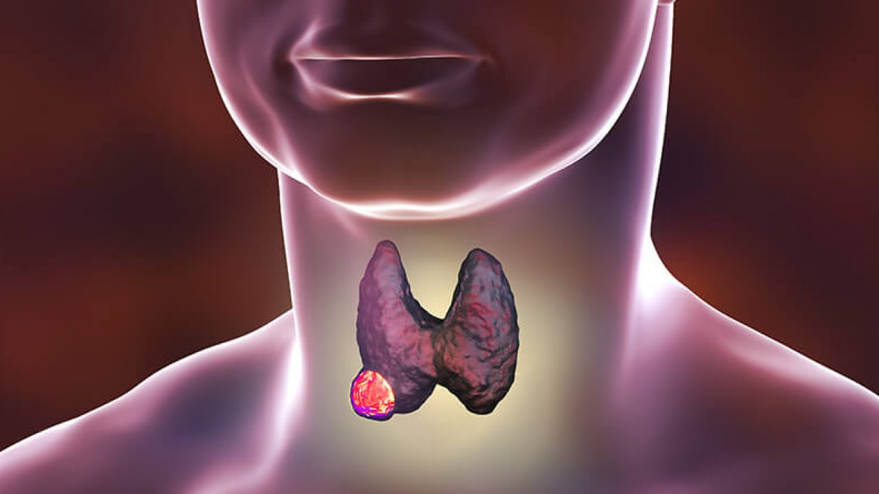 If You Have A Lump In Your Neck It Could Be Thyroid Cancer